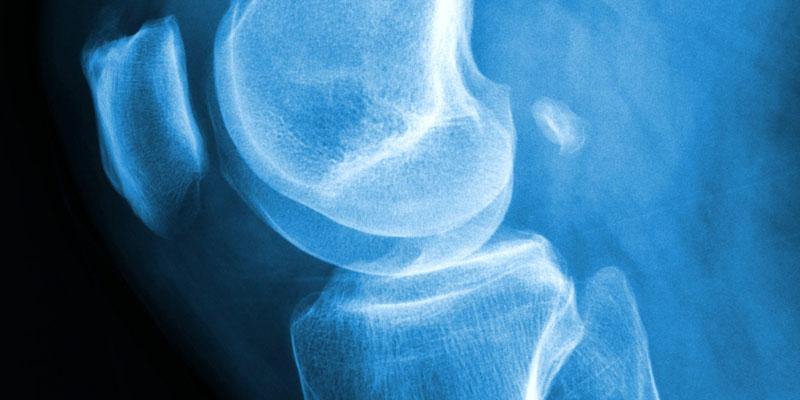 Osteoporoza a cukrzyca